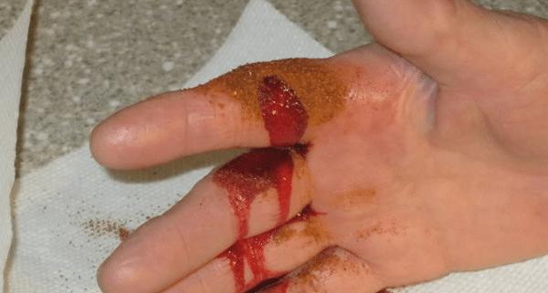 stop-bleeding