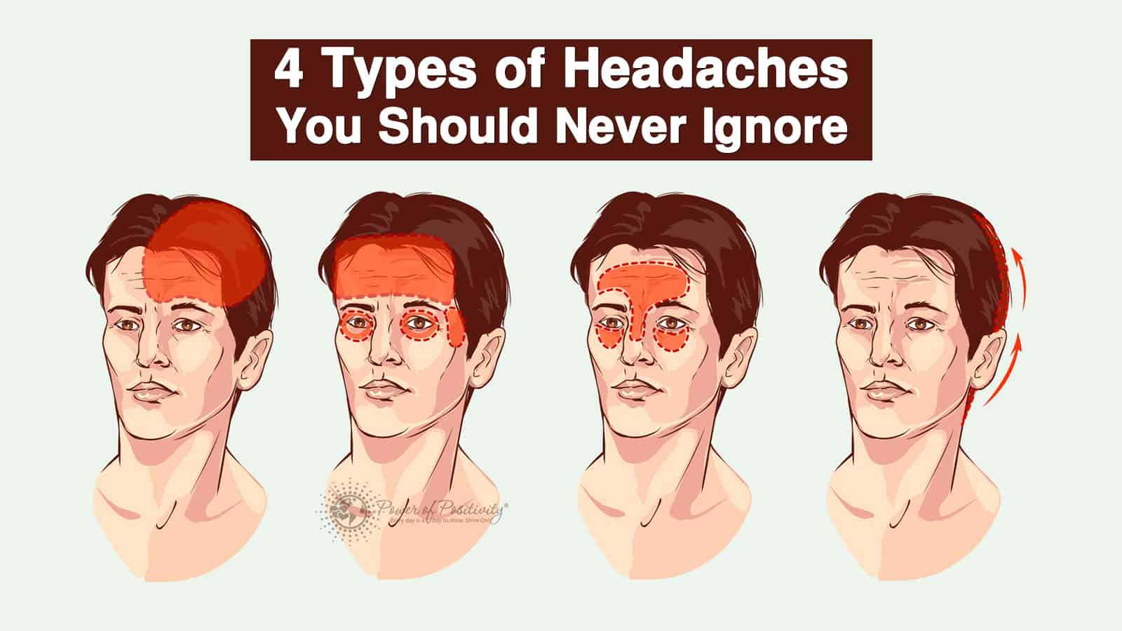 4 Types of Headaches You Should Never Ignore