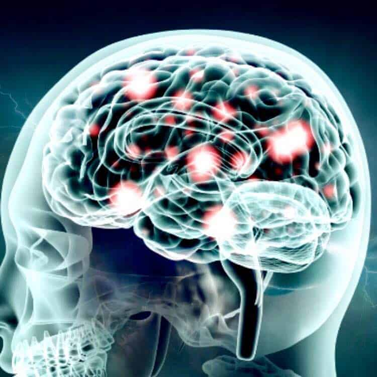 low dopamine in brain could cause weight gain