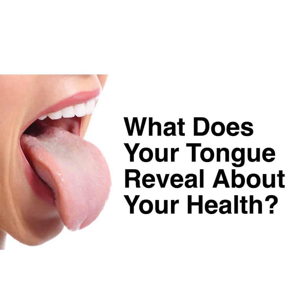 tongue-health
