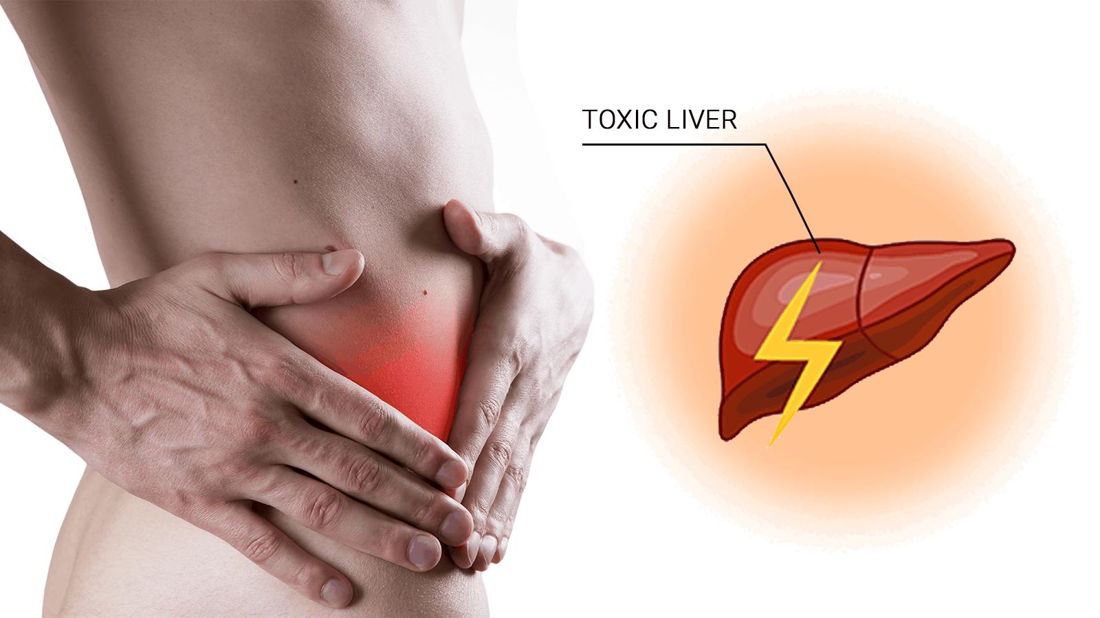 toxic liver