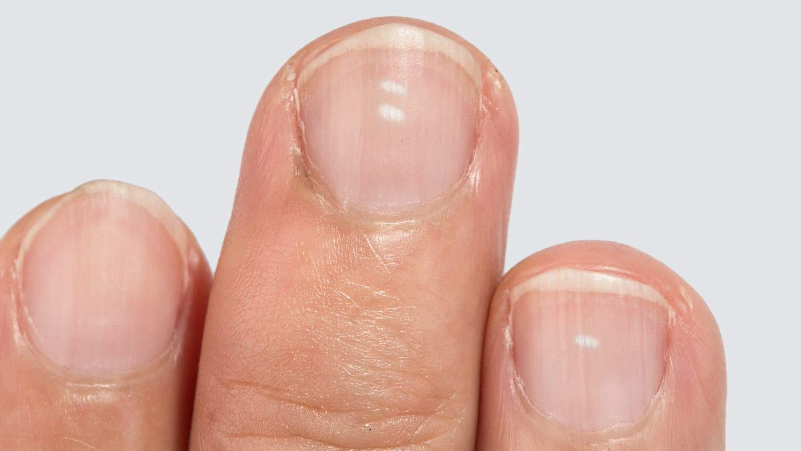 Researchers Explain What Your Fingernails Can Tell You About Your Health