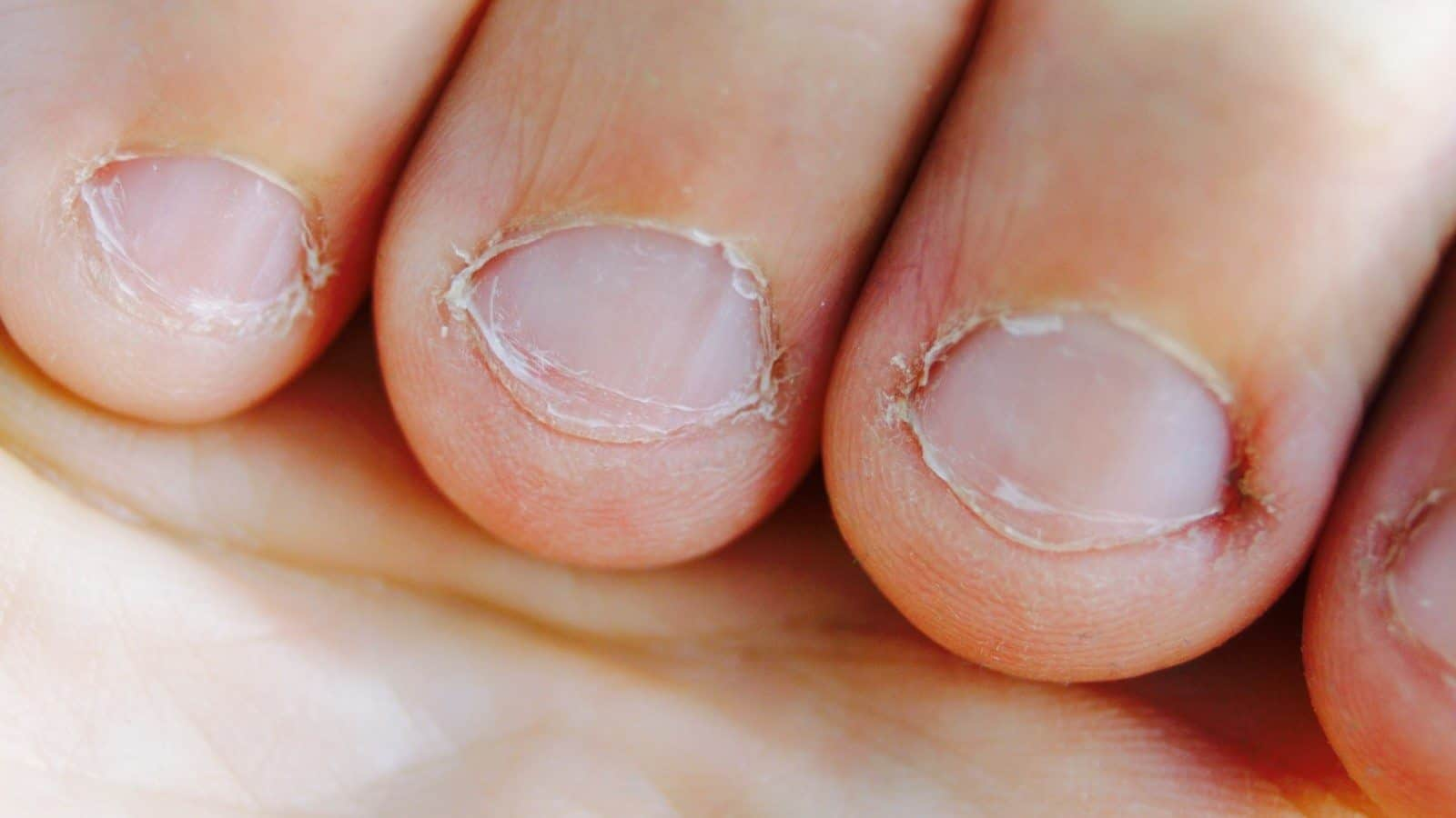 Researchers Explain What Biting Your Nails Says About Your Personality