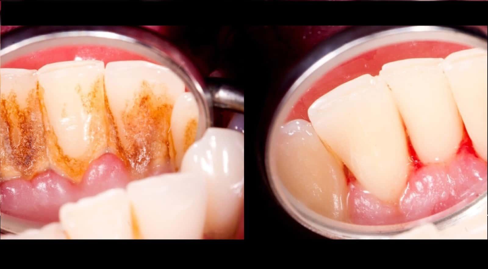 how to avoid plaque buildup on teeth