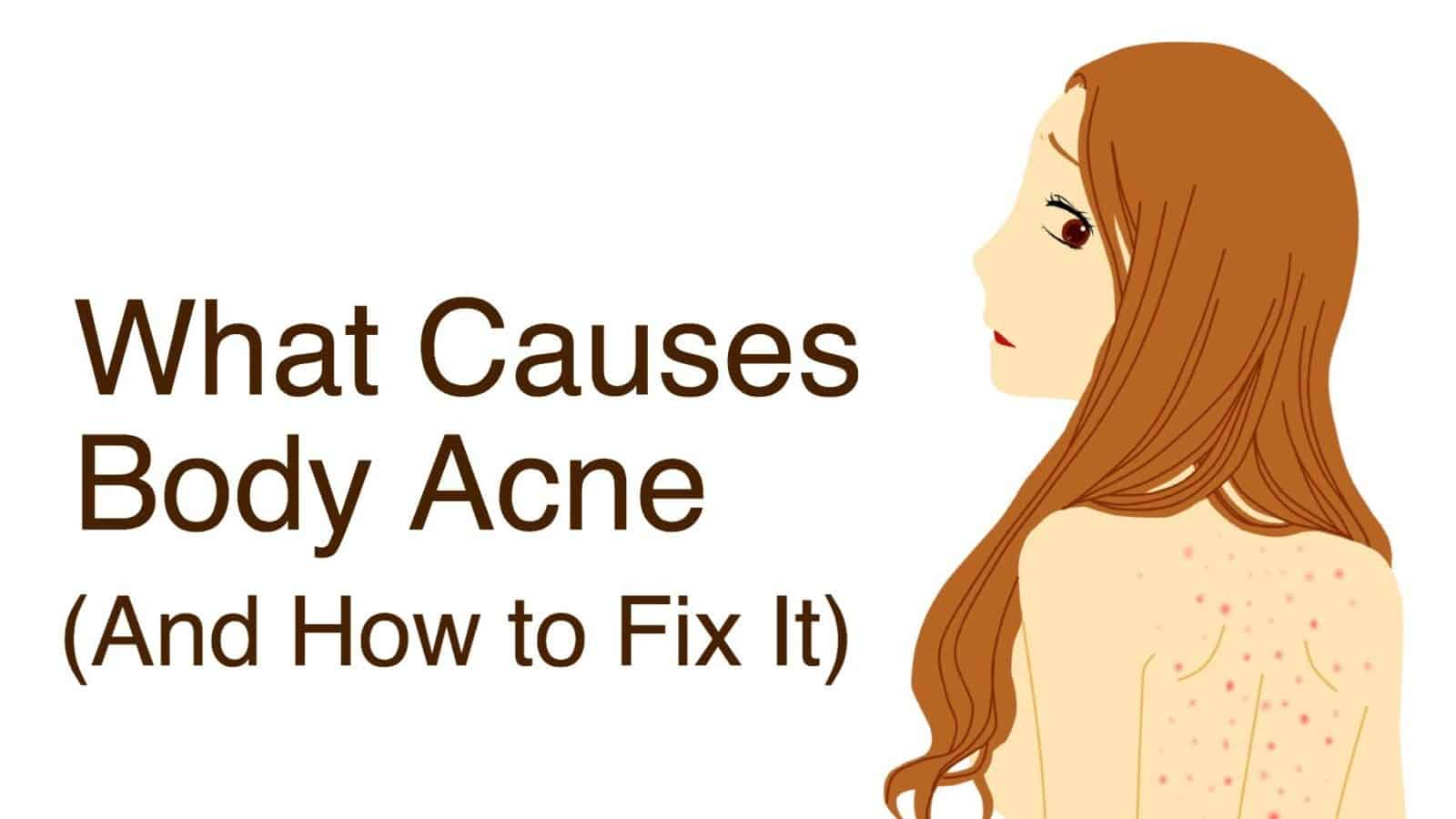 acne,causes