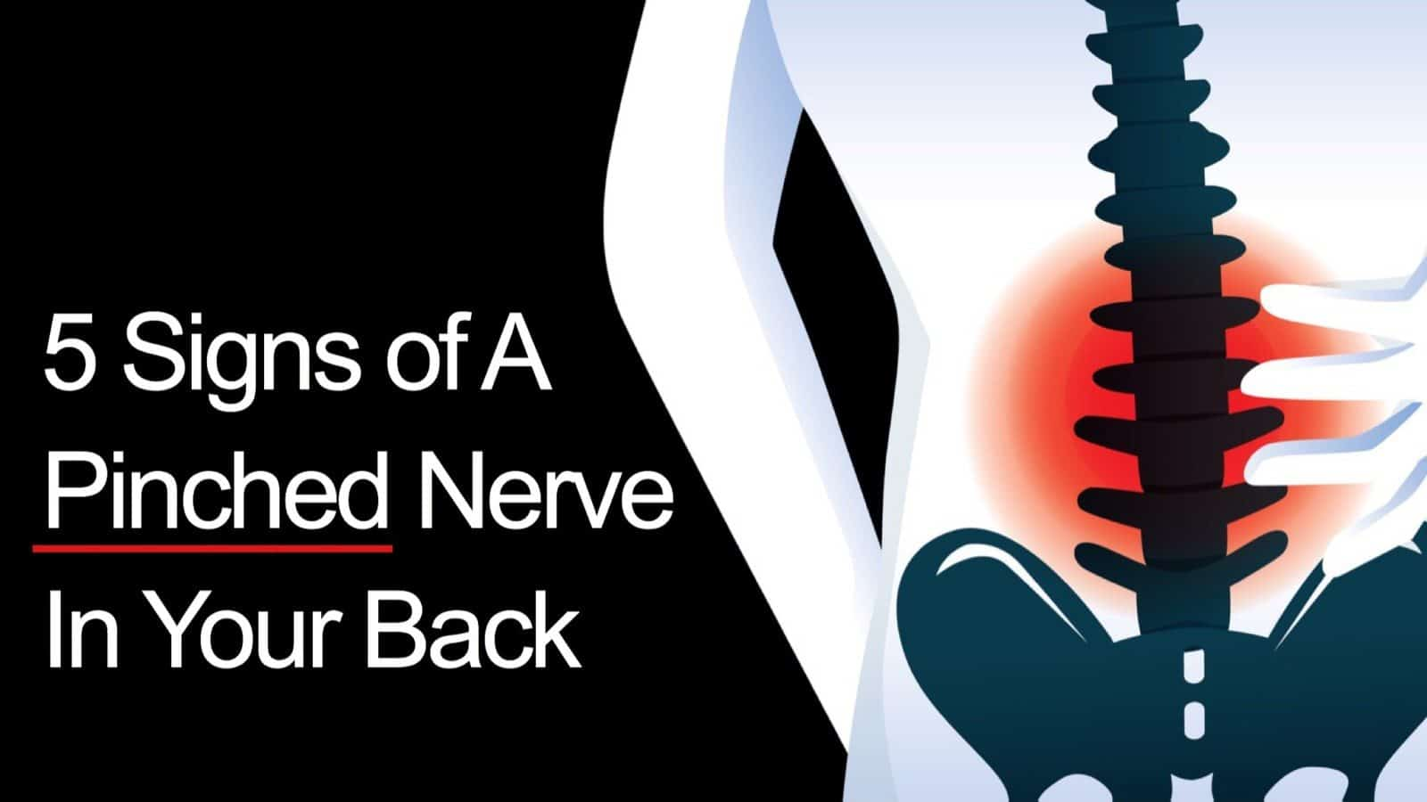 5 Signs Of A Pinched Nerve In Your Back