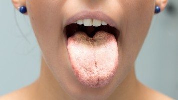 tongue color health
