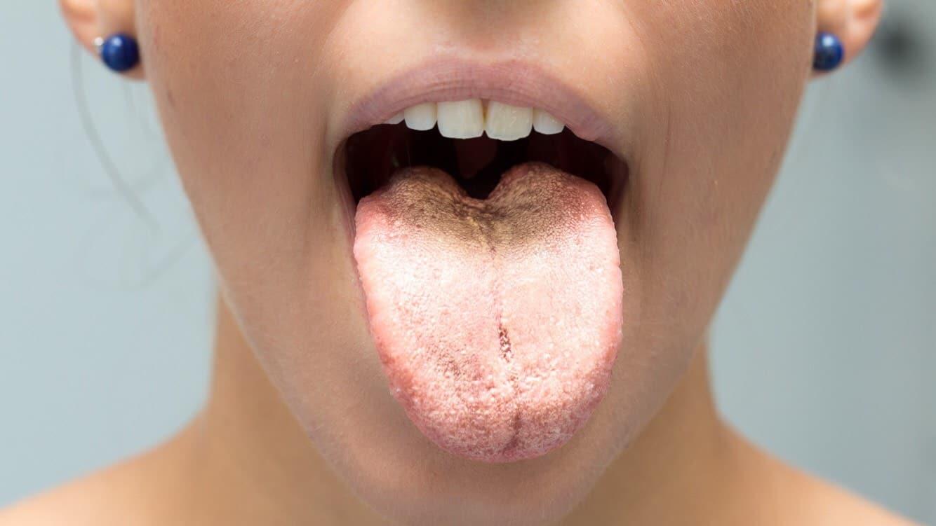 tongue color health