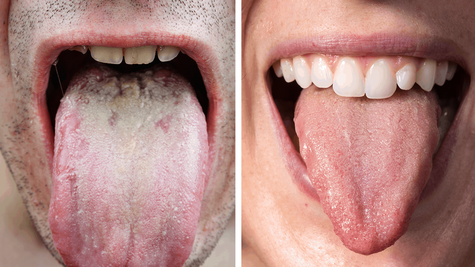 Researchers Explain What The Color Of Your Tongue Says About Your Health