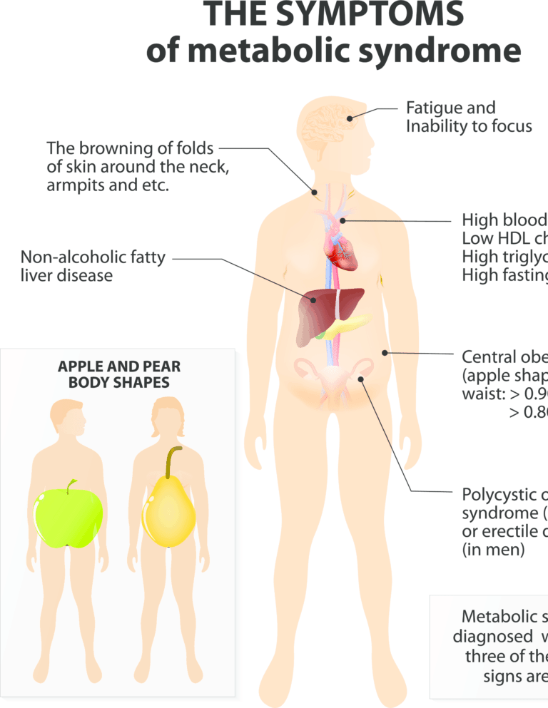 influence of metabolic syndrome on hypertension related Type 2 diabetes mellitus and obesity, major health problems worldwide, are considered to be closely related [1 - 6]in the majority of cases type 2 diabetes is now widely considered to be one component within a group of disorders called the metabolic syndrome.