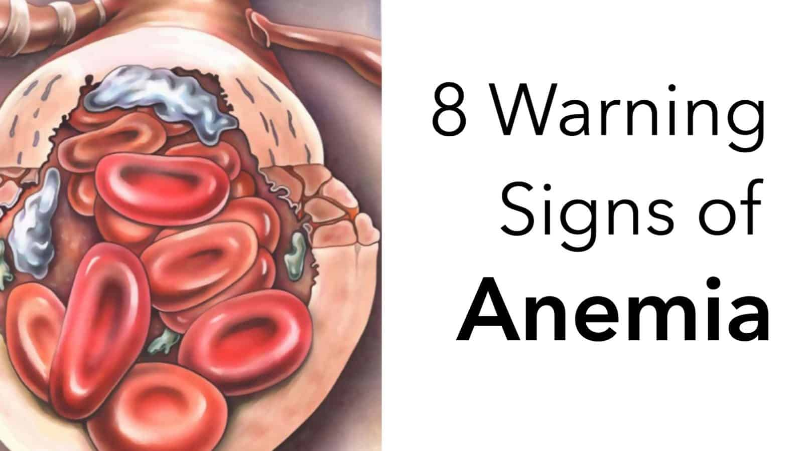 8 Warning Signs of Anemia