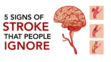 Avoid stroke