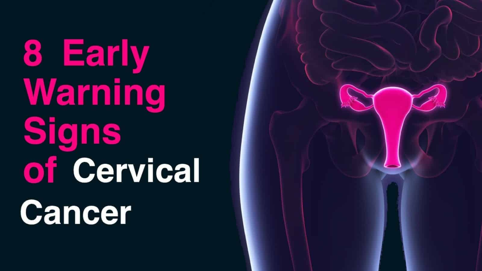 8 Early Warning Signs Of Cervical Cancer