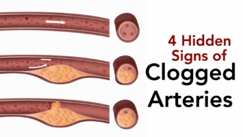 clogged arteries