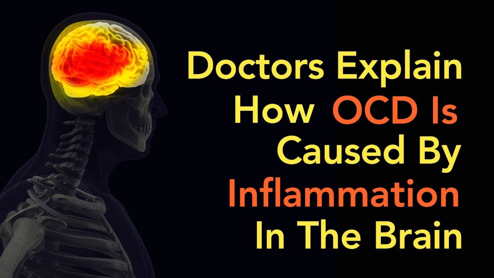 Doctors Explain How OCD Is Caused By Inflammation In The Brain