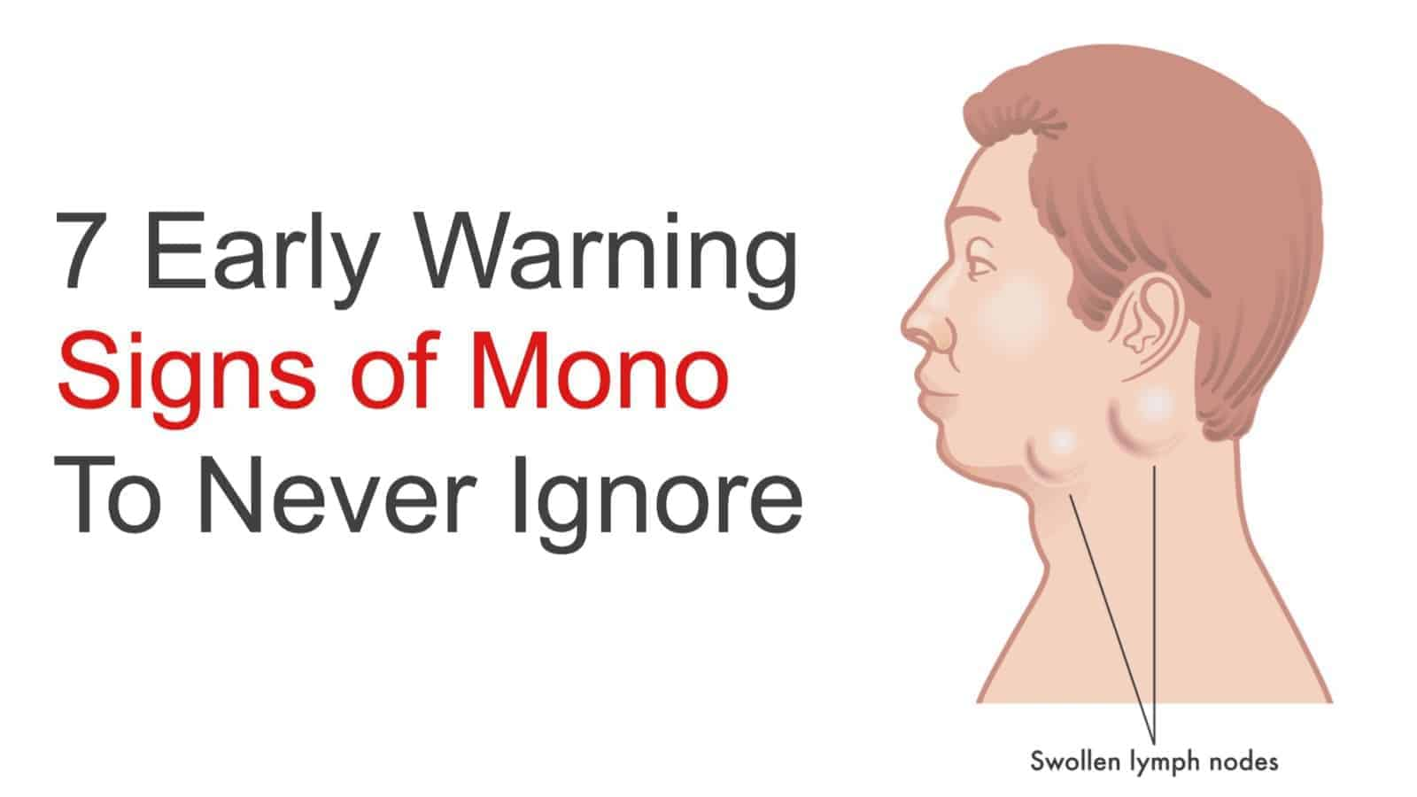Mononucleosis in adults can not