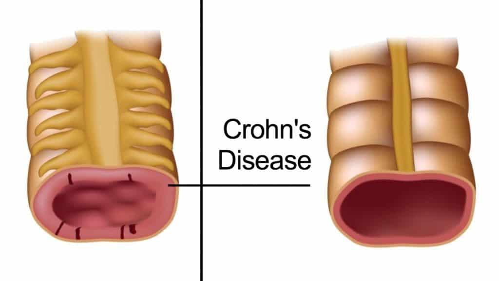 5 Early Warning Signs of Crohn's Disease
