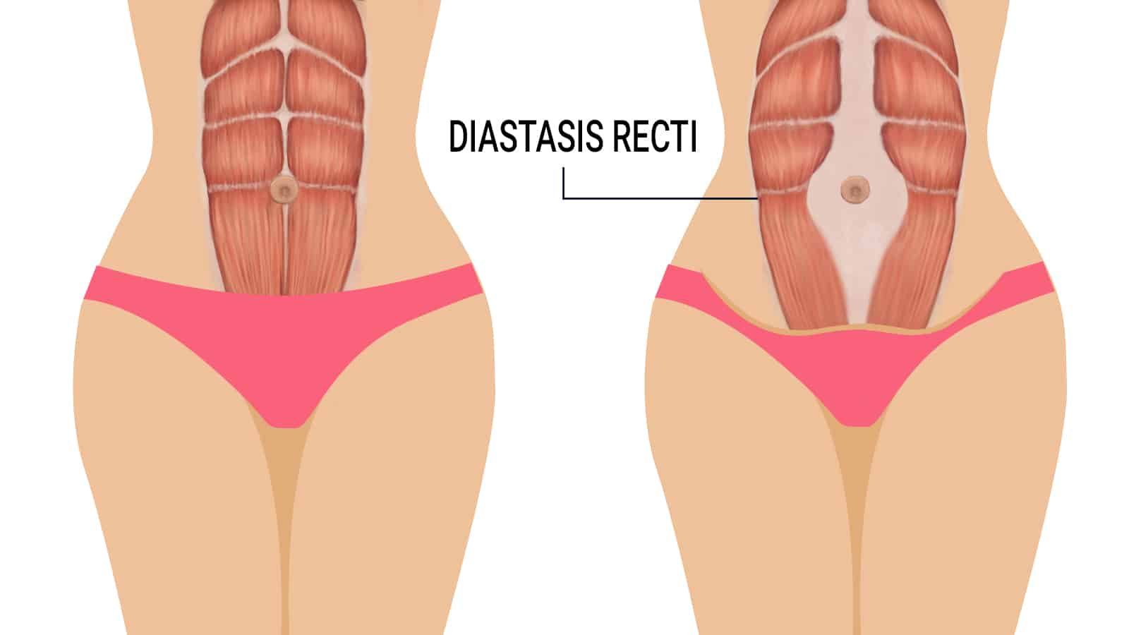 Image result for recti diastasis