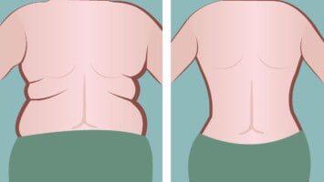 side fat