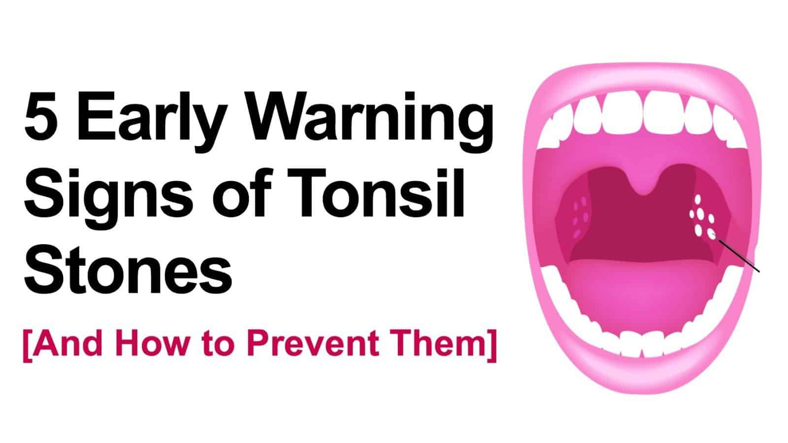 5 early warning signs of tonsil stones and how to prevent them