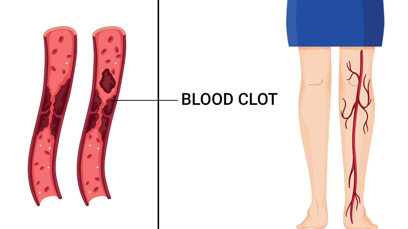 blood clot