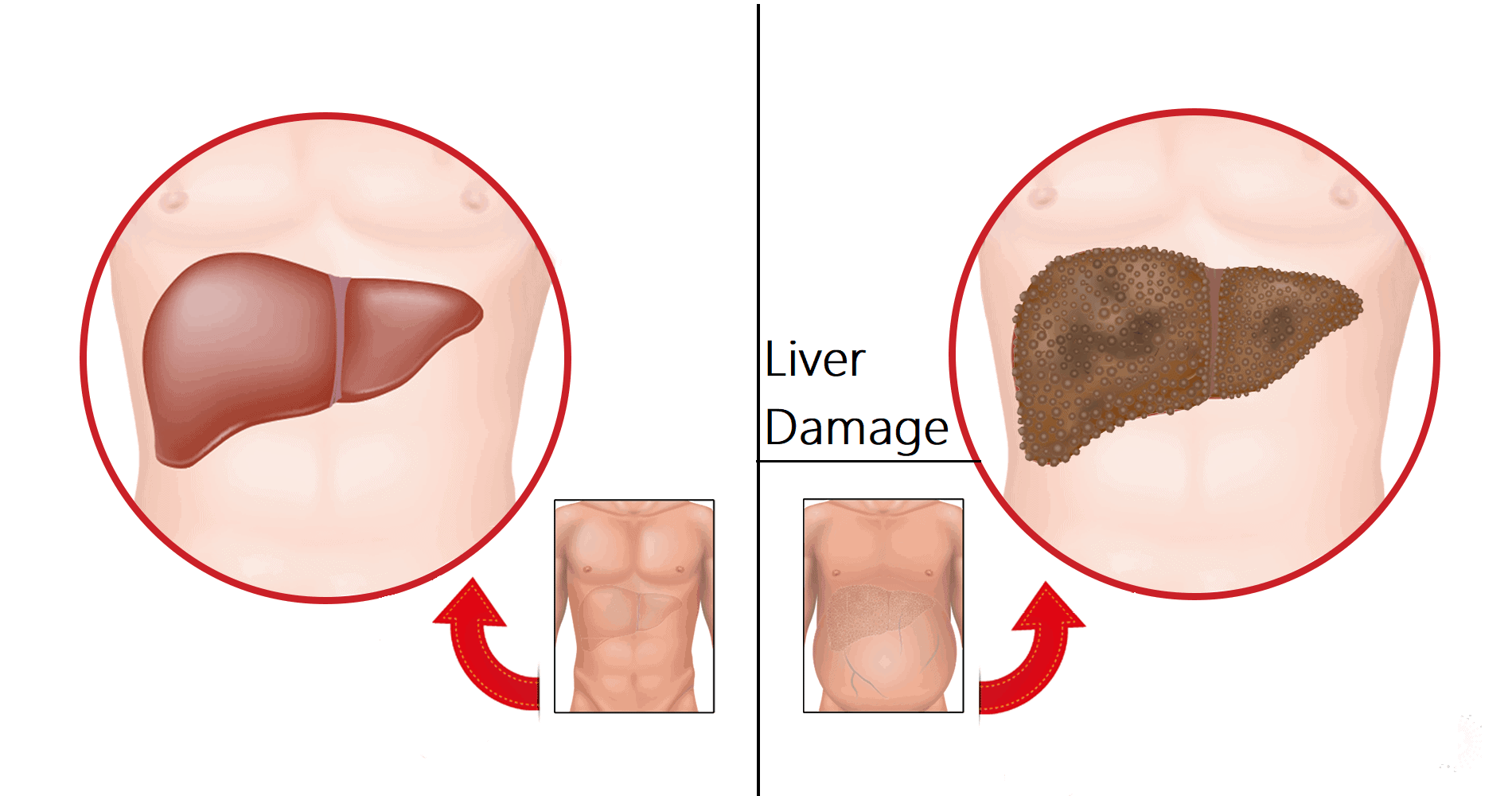 7 Early Warnings Of Liver Damage To Never Ignore