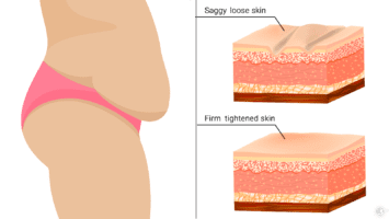 tighten sagging skin