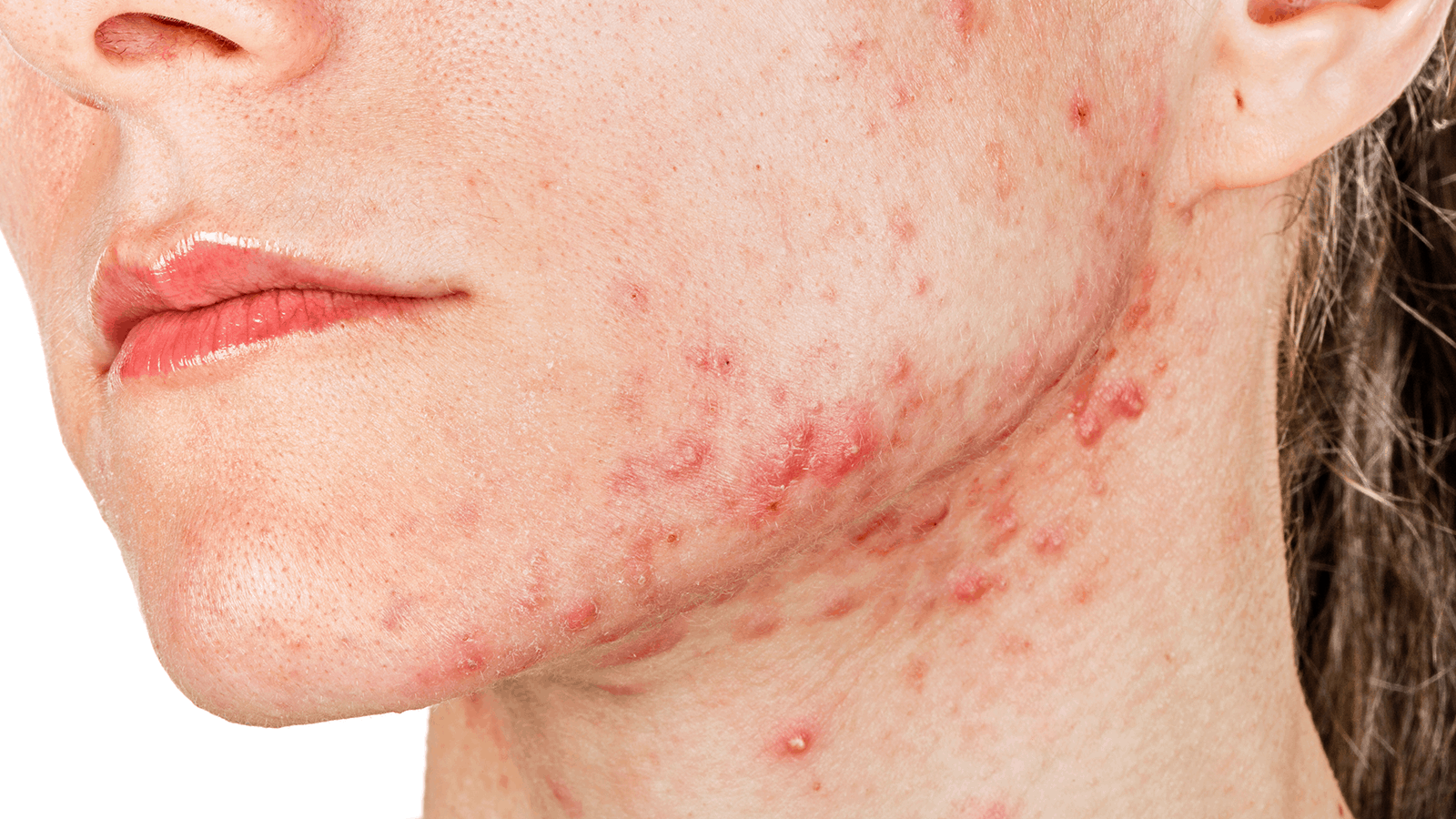 how to actually get rid of acne