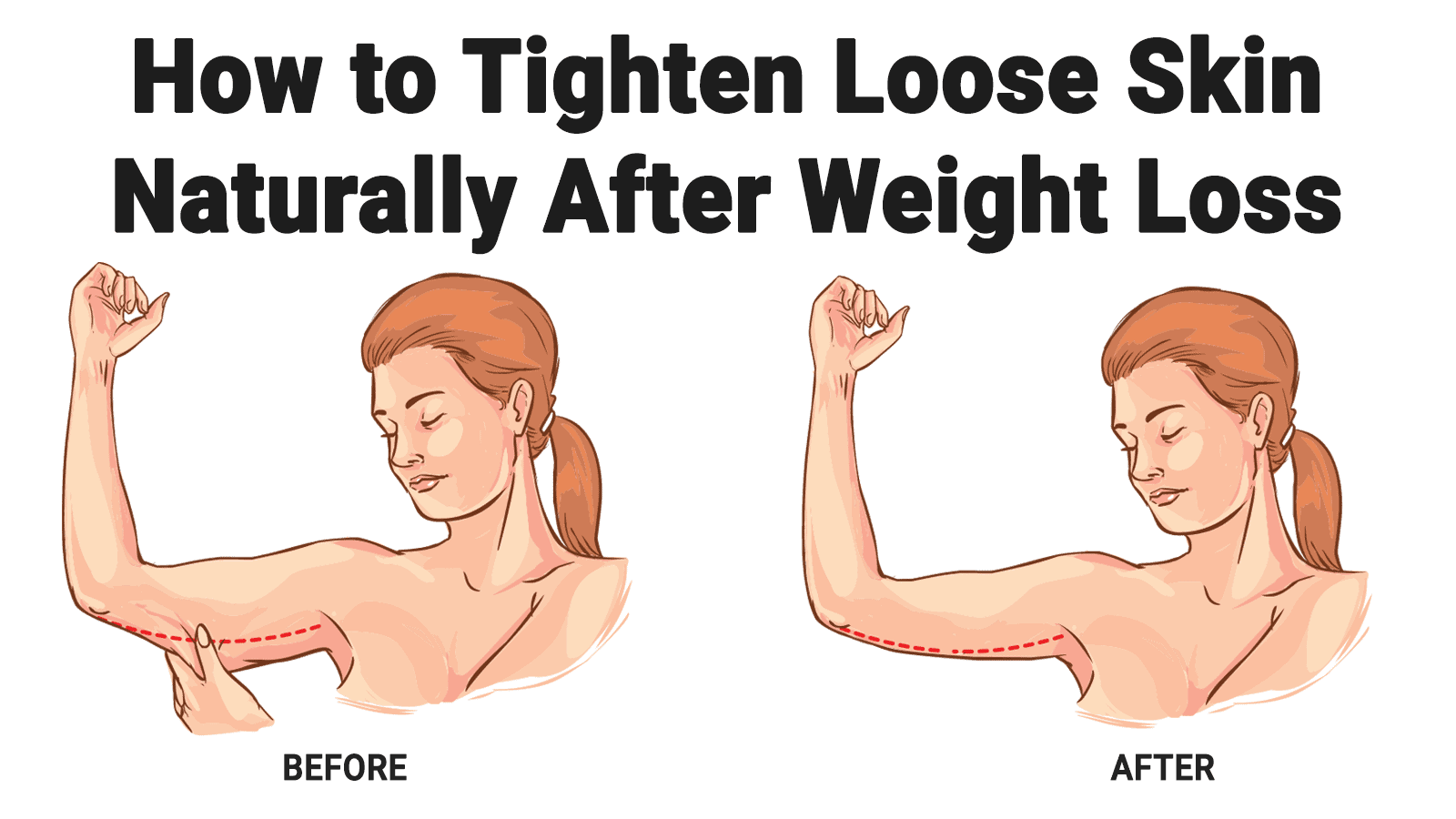 How slow to lose weight to avoid loose skin