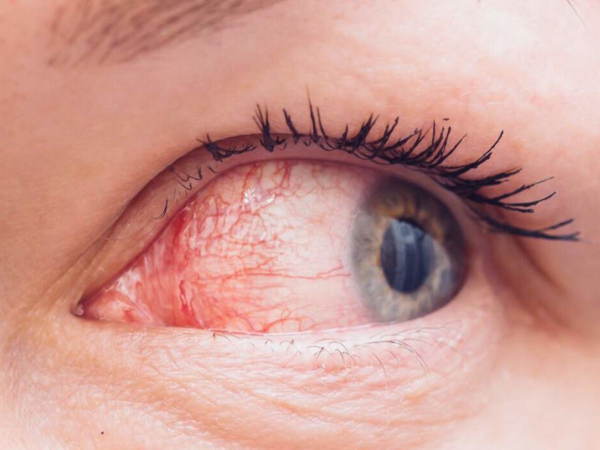 Scientists Explain Why Your Eyes Twitch (And How to Fix It)