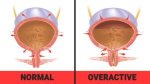 overactive bladder - uti