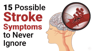signs of a stroke