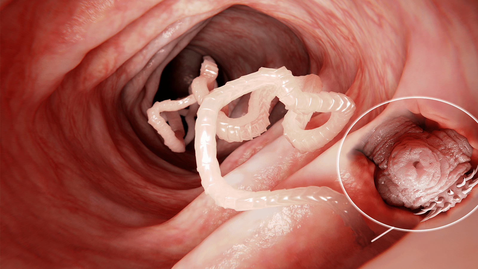 10 Early Signs of A Tapeworm to Never Ignore