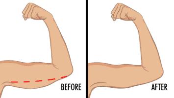underarm fat