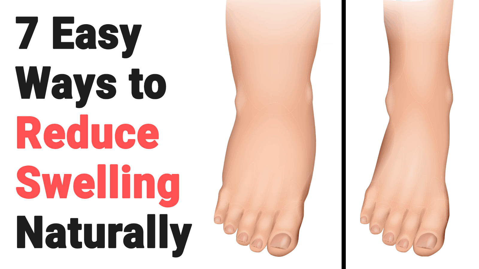reduce swelling
