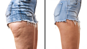 how to lose thigh fat for women