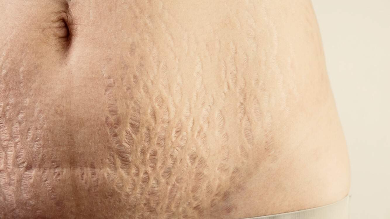 Features New Cream Stretch Marks