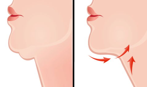 lose double chin
