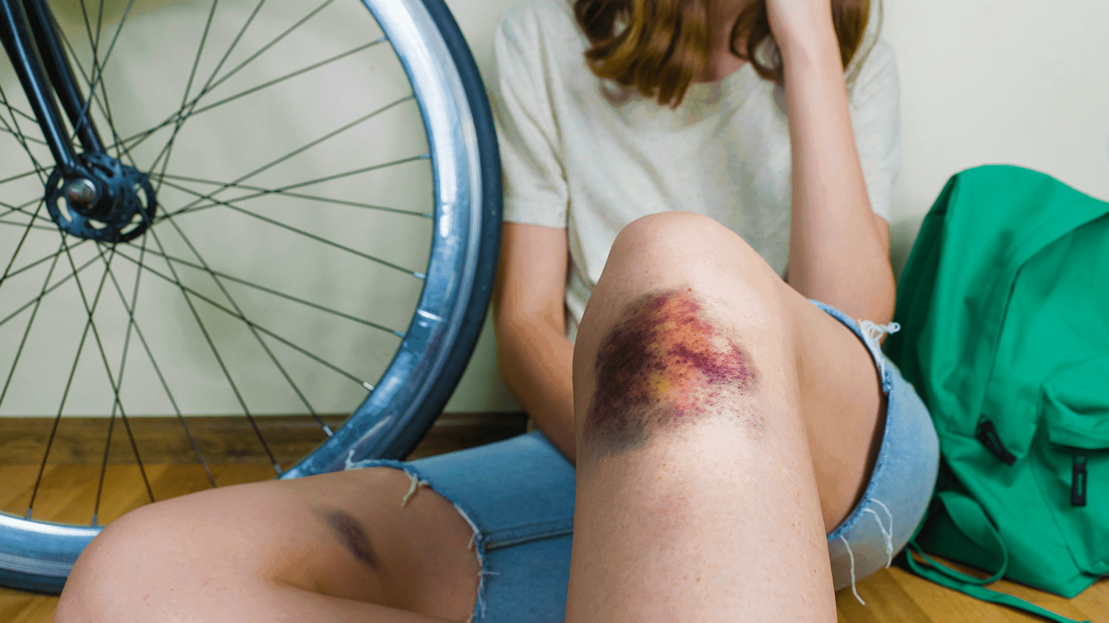 bruise easily