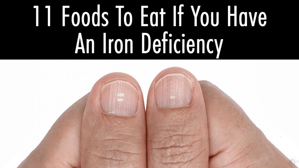iron deficency