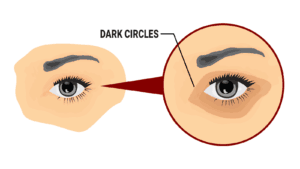 dark circles under eyes