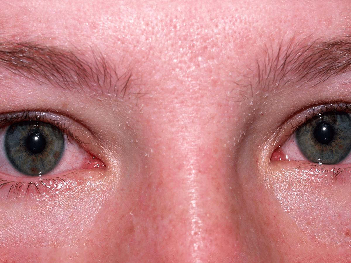 toxic shock rash