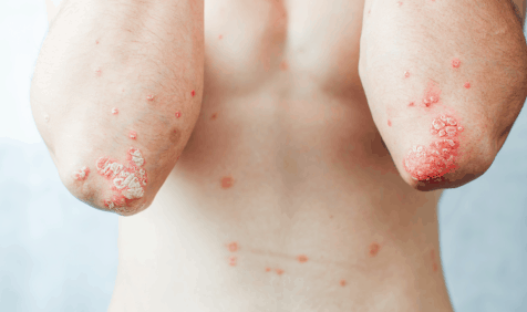 autoimmune disorder