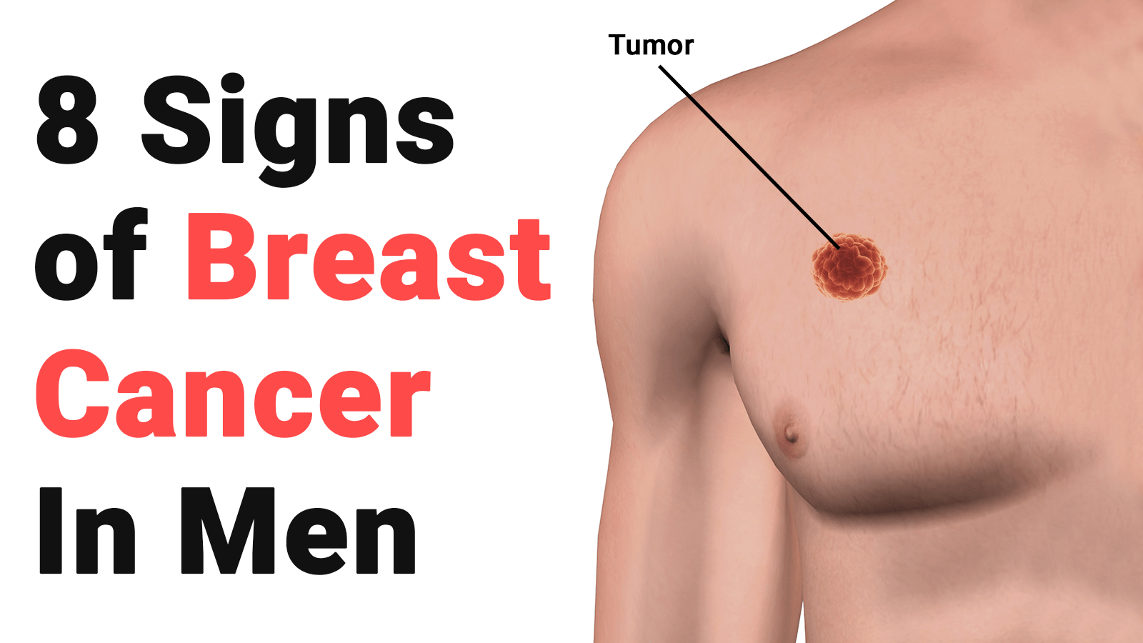 Image result for breast cancer in men