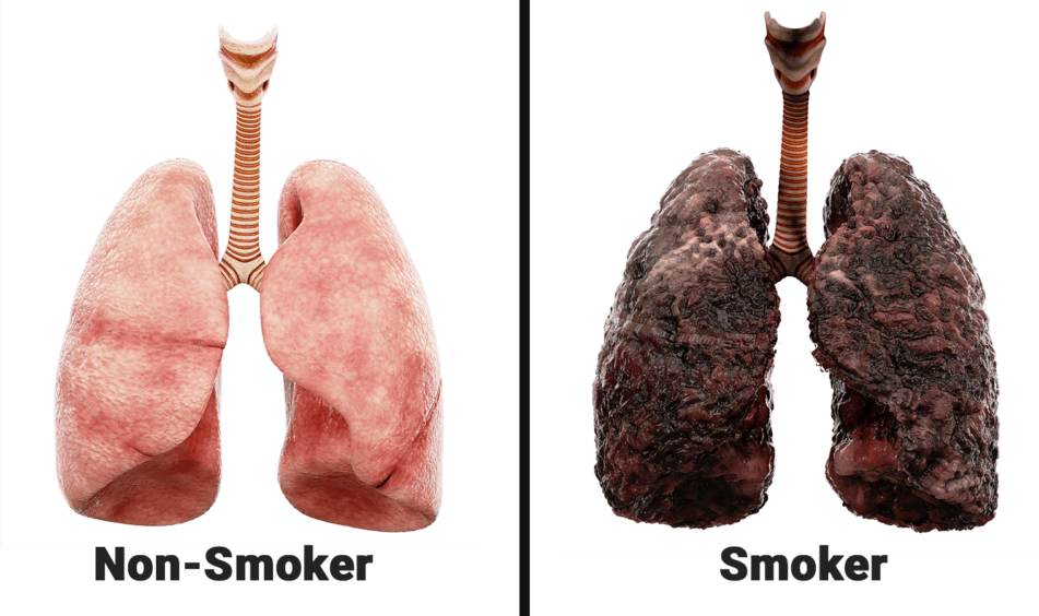 what smoking does to your lungs