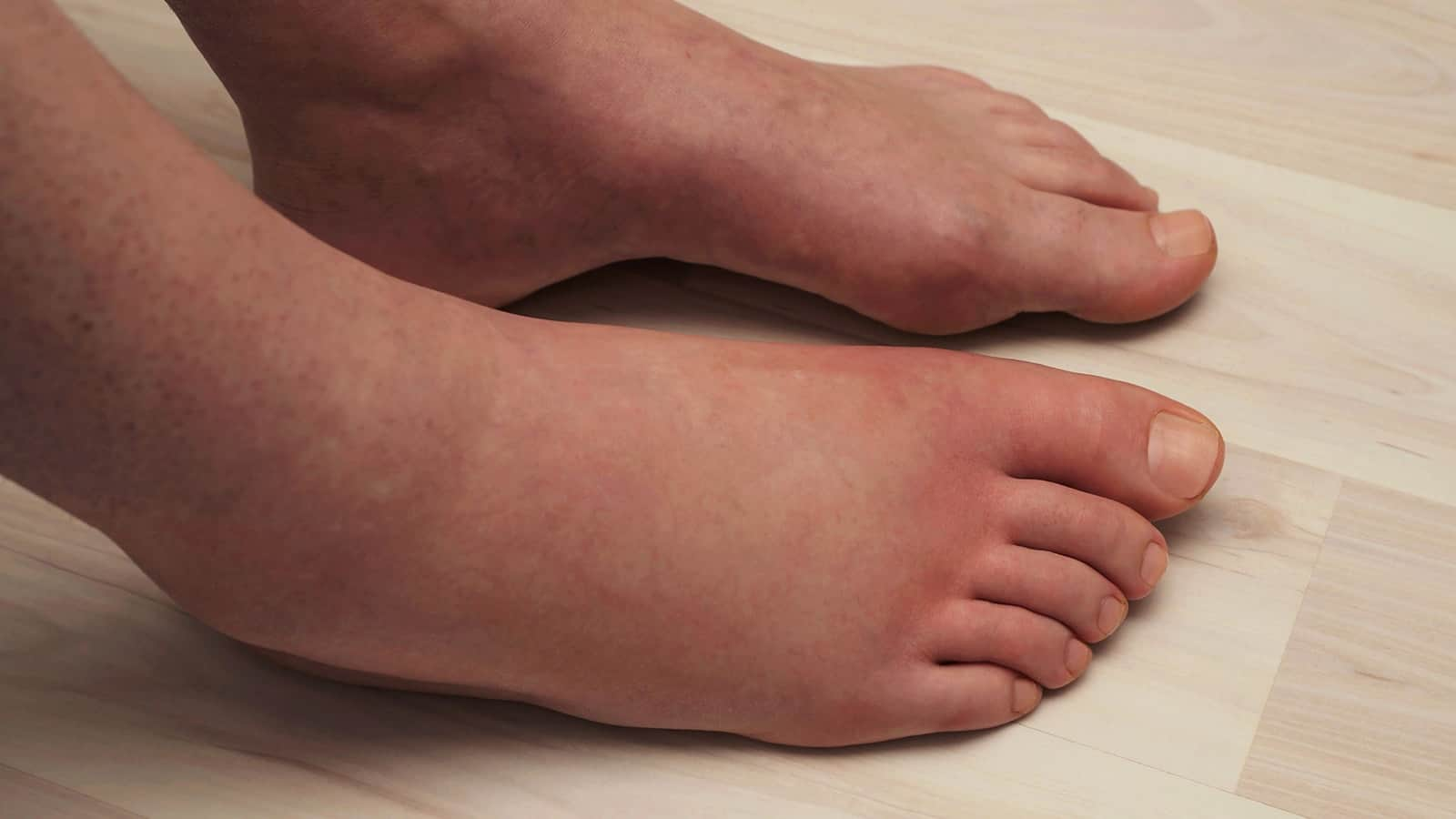 Why there are swelling of the legs, and how to get rid of them