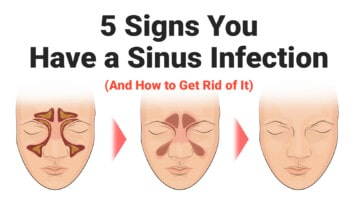sinus-infection