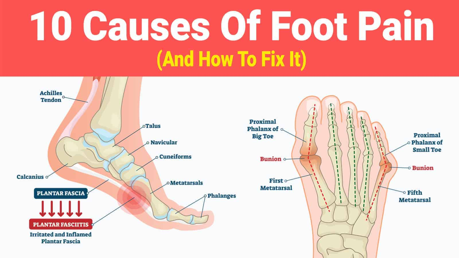 10 causes of foot pain (and how to fix it) Diagram of Sesamoiditis