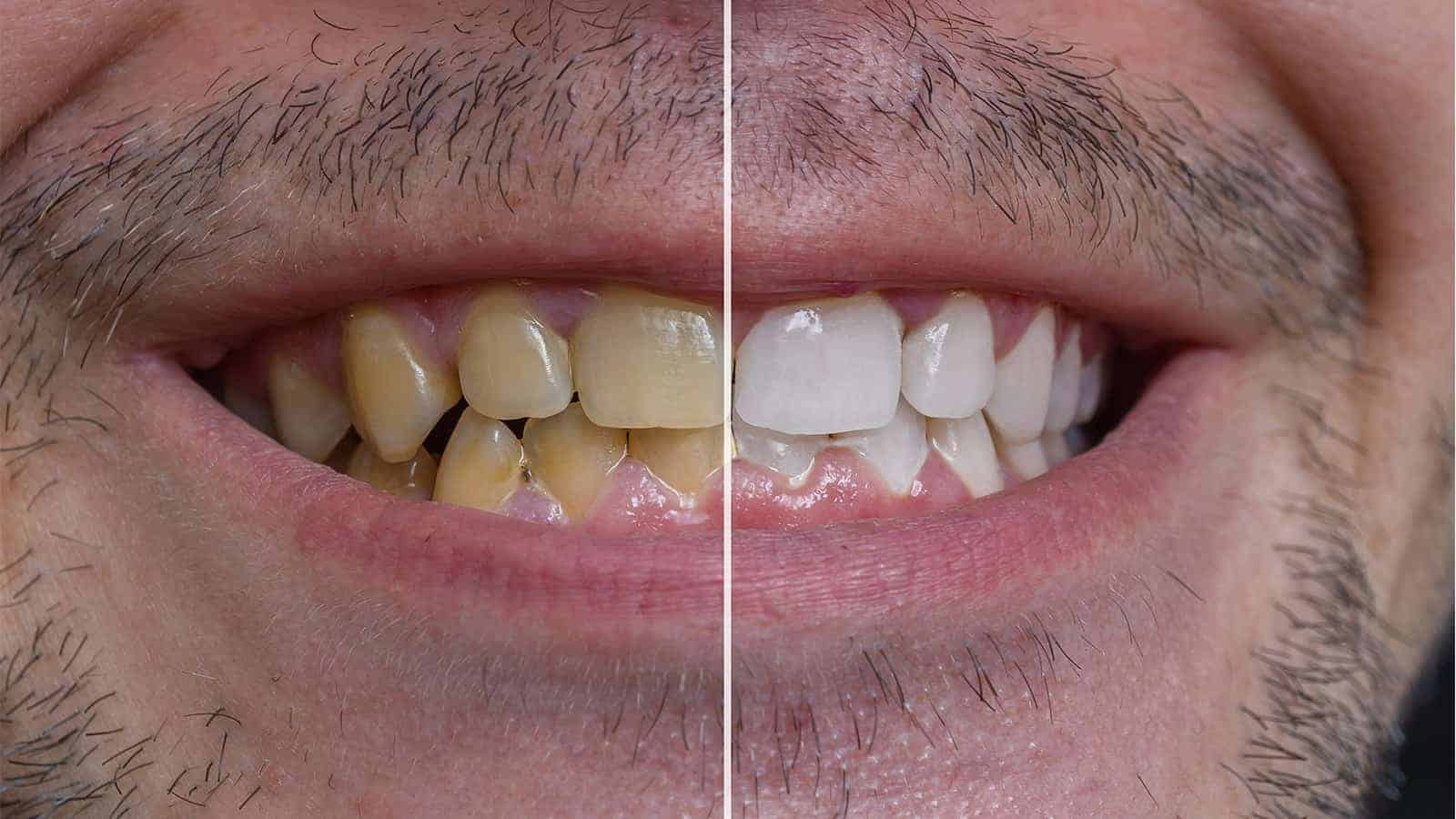 clean yellow teeth naturally