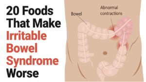 Irritable bowel syndrome - pelvic pain